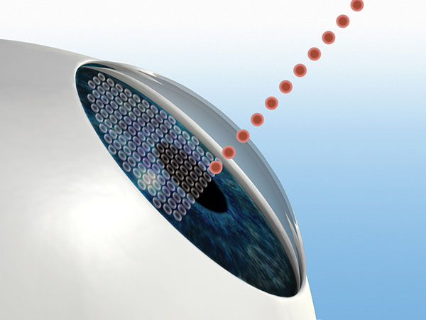 Illustration of LASIK Step 2